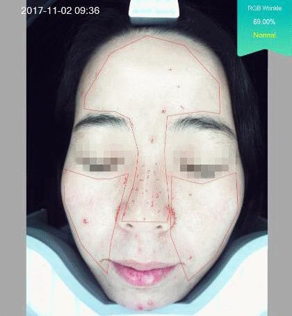 אבחון קמטי הבעה